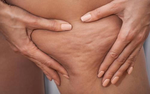 Comment éliminer la cellulite?
