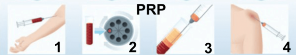 injection prp tendinite